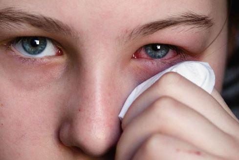 Bệnh đau mắt đỏ bao lâu thì khỏi