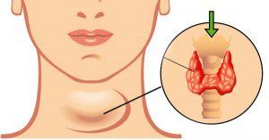 Bệnh suy giáp có nguy hiểm không?