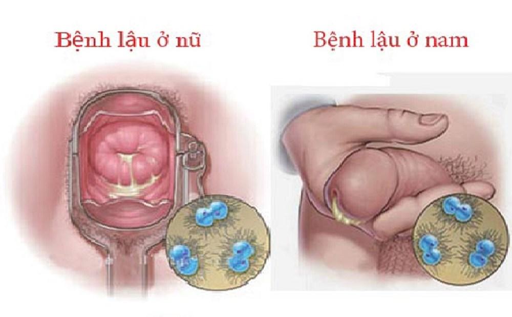 triệu chứng của bệnh kim la ở nam giới và phụ nữ