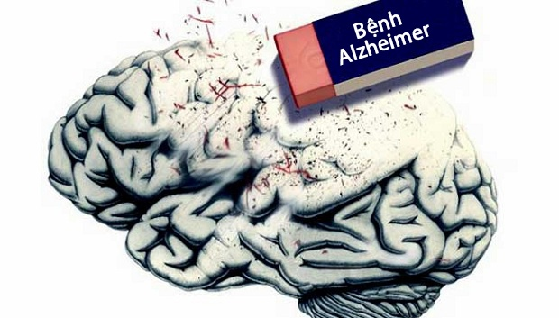 Bệnh alzheimer có di truyền không ?