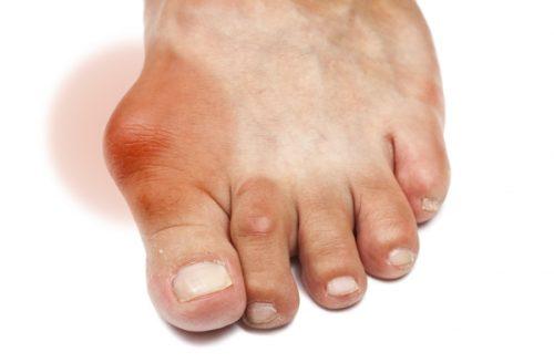 Cua đồng chữa bệnh gout