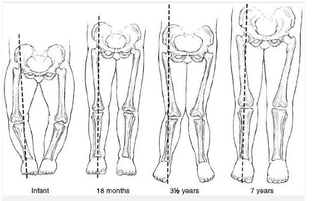 Đai chữa chân vòng kiềng có hiệu quả không