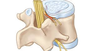 Chèn ép dây thần kinh là gì ?