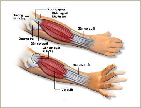 Hiện tượng đau khuỷu tay