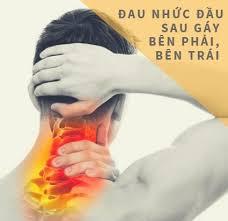 Hiện tượng đau sau gáy bên phải