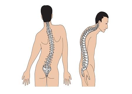 Bệnh vẹo cột sống là gì
