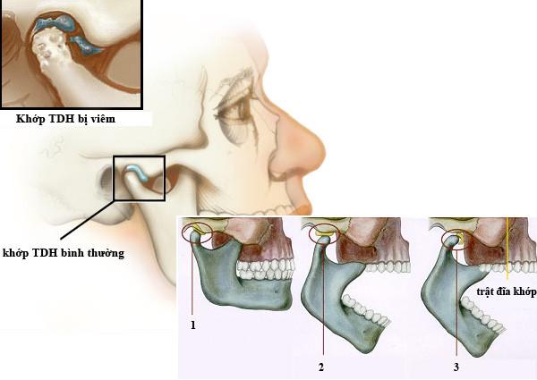 Cách chữa trị viêm khớp thái dương hàm mãn tính